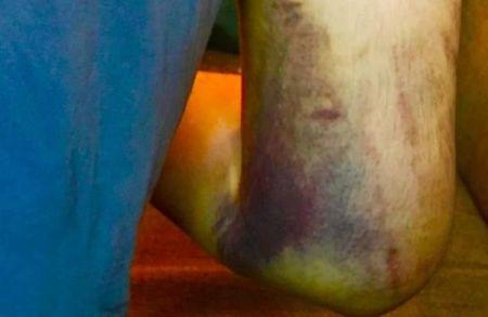 袭击造成海野雅威右臂和肩膀骨折,锁骨骨折,并伴随全身瘀青。(筹款网站GoFundMe)